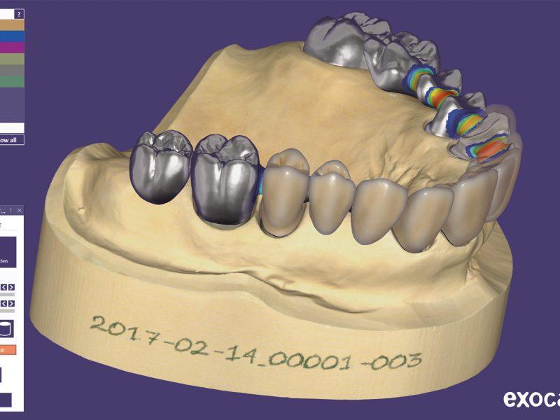 Screen shot - ExoCAD dental model