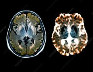 Image: Comparative brain scans of a patient with CJD