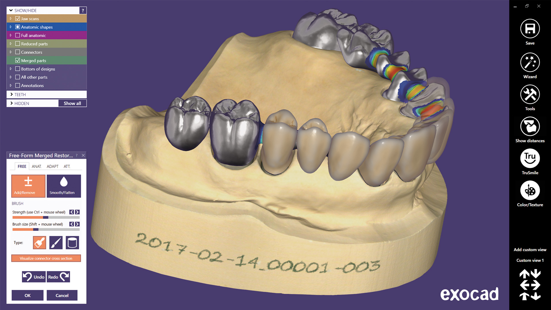 Screen shot - ExoCAD dental model