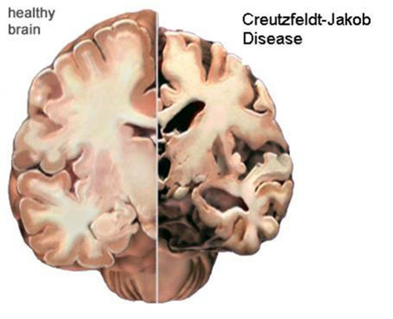 Graphic - comparison of normal brain with one damaged by CJD